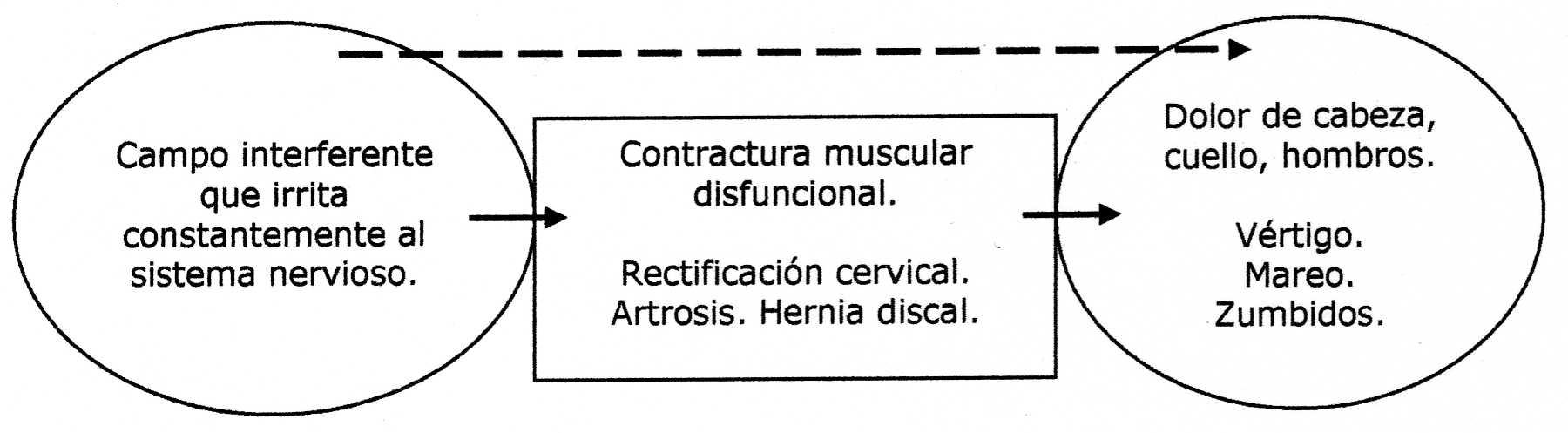 El tumor benigno en el departamento de pecho de la columna vertebral